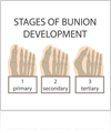 Stages of Bunion Development